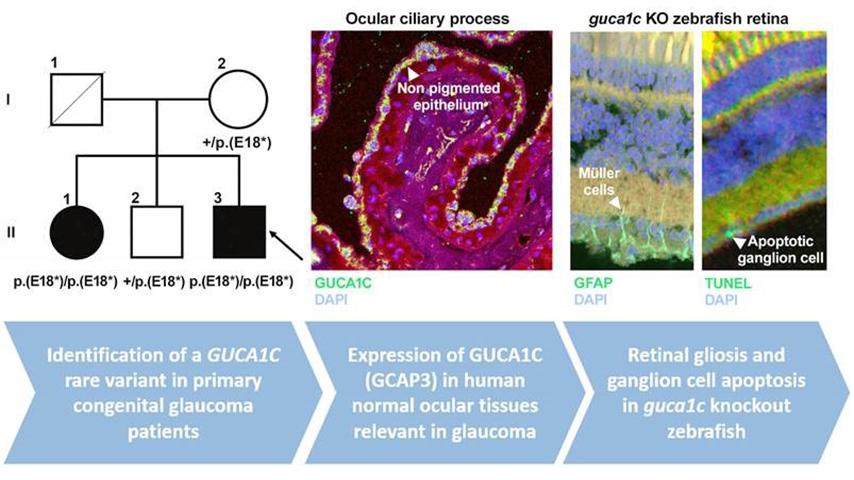 Importante descubrimiento sobre el  glaucoma en la UCLM
